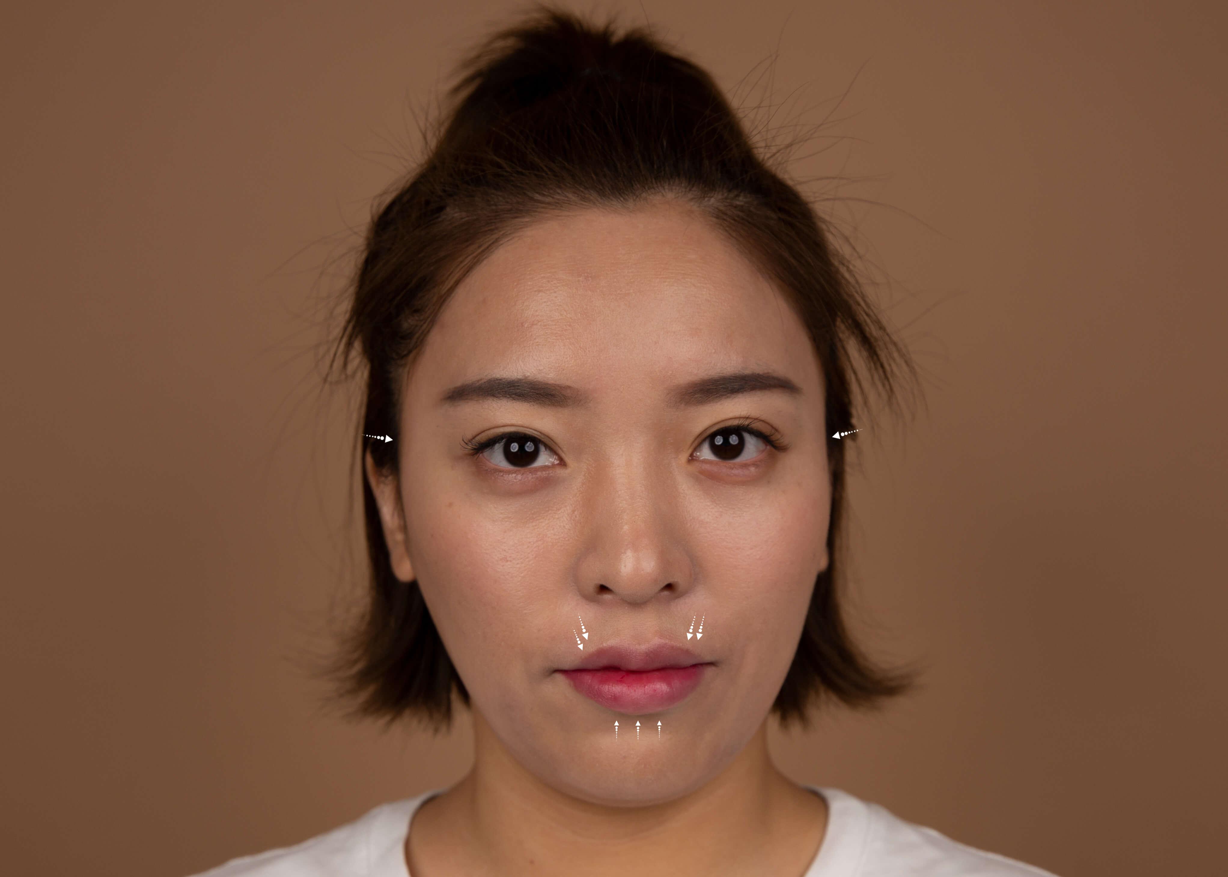Dermal Filler and Botox